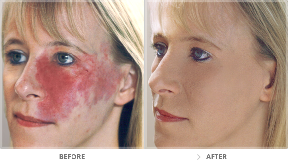 medical micropigmentation scar camouflage burns